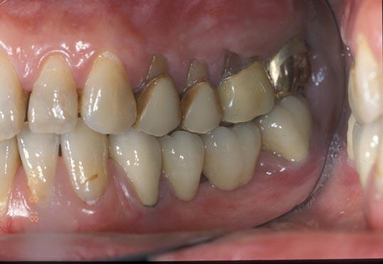 due arcate bocca laterale destro