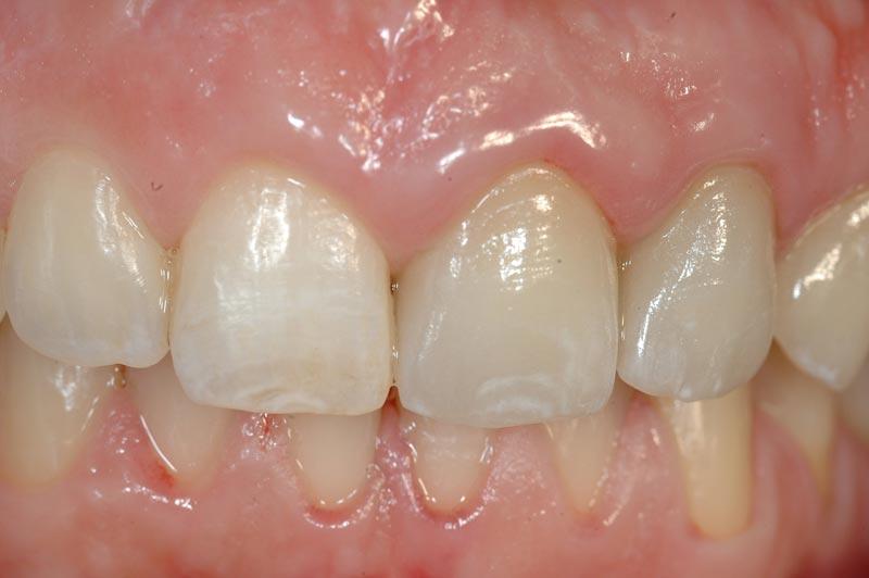 impianto dentale prima 2b
