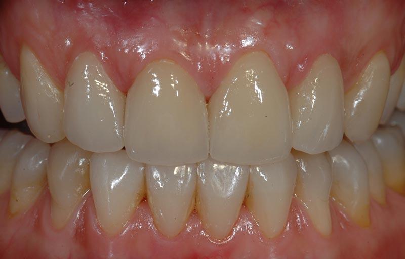 impianto dentale dopo