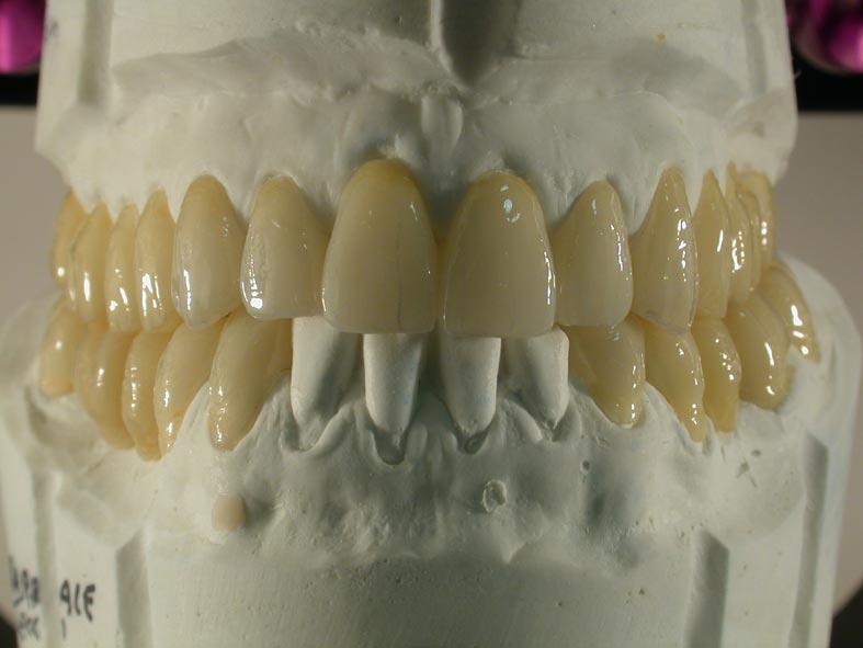 Denti provvisori su modello g