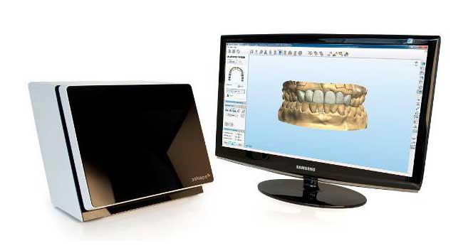 Scanner dentale